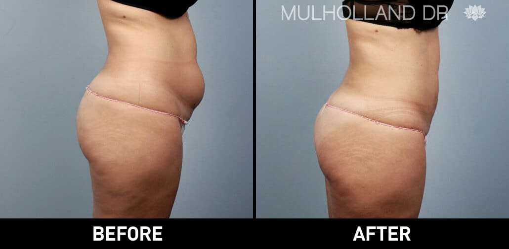 Vaser Lipo - Before and After Gallery – Photo 8