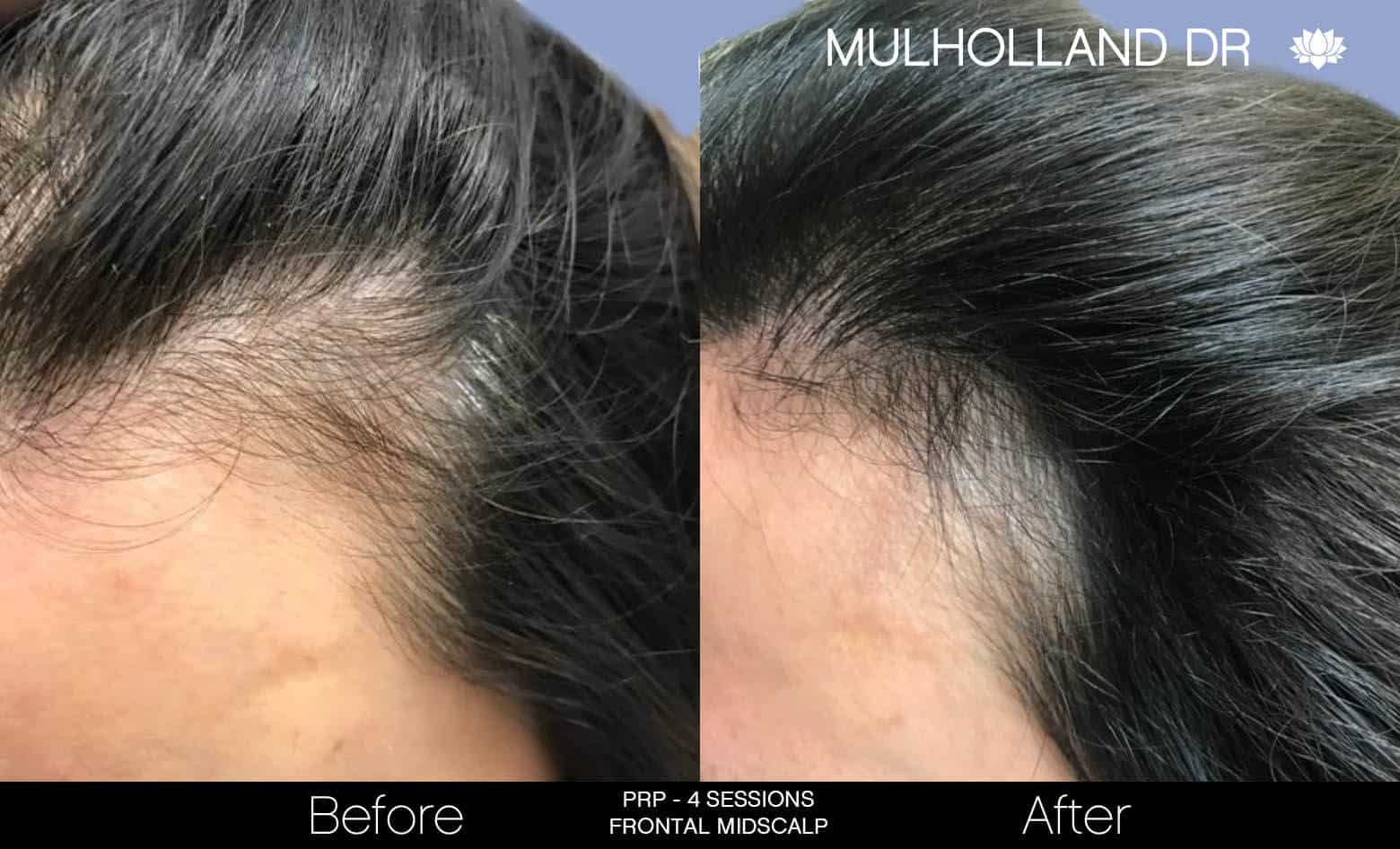 Non-Surgical Hair Restoration - Patient Before and After Gallery – Photo 8