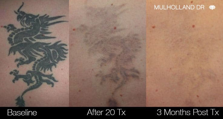 Laser Tattoo Removal - Before and After Gallery – Photo 8