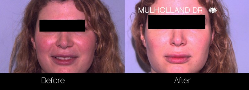 Rosacea Treatment - Patient Before and After Gallery – Photo 2