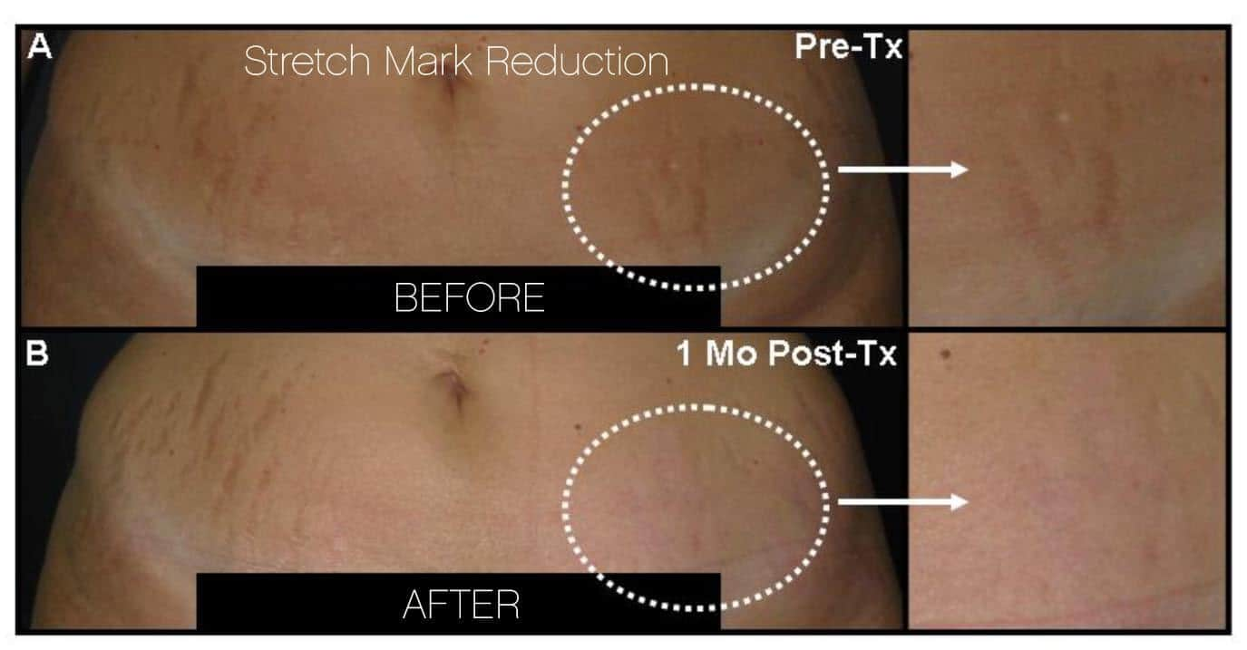 Laser Stretch Mark Removal - Patient 8