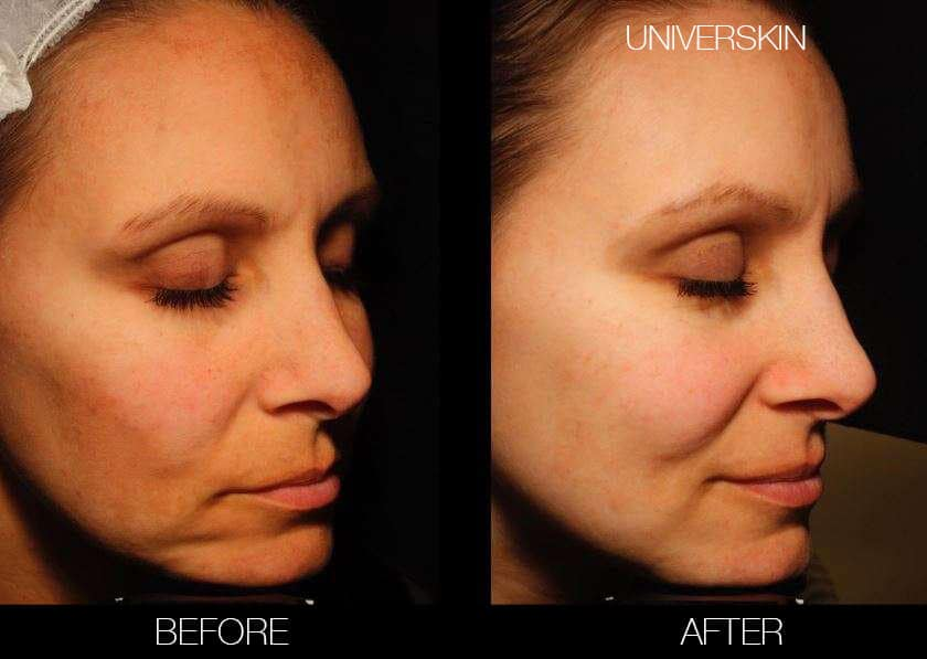 Universkin - Before and After Gallery – Photo 9