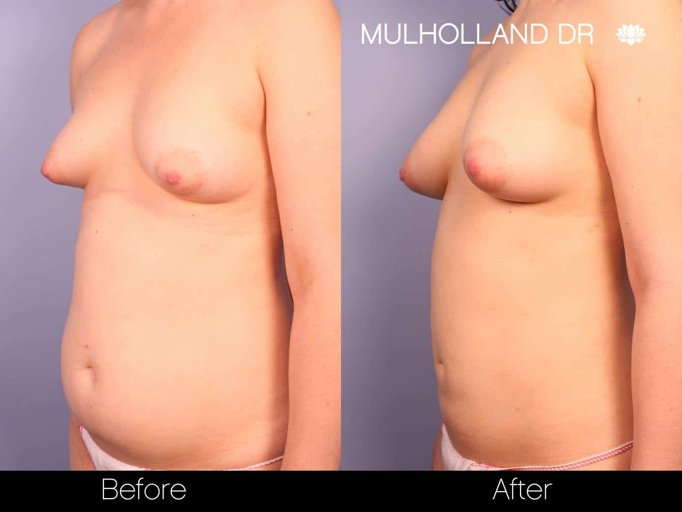Fat Grafting Breast Augmentation - Before and After Gallery – Photo 8