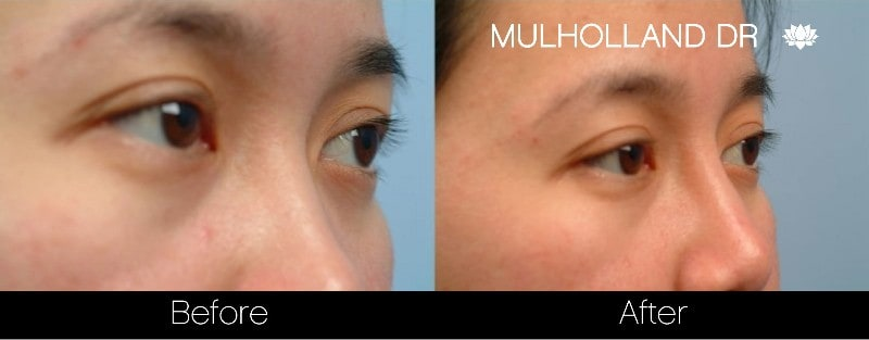 5 Minute Nose Job - Before and After Gallery – Photo 9