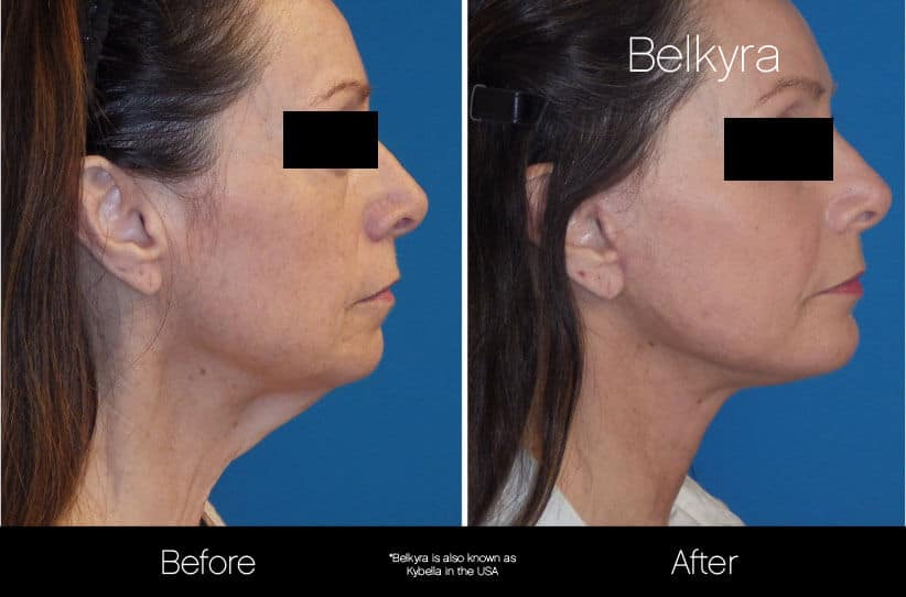 Belkyra - Before and After Gallery – Photo 10