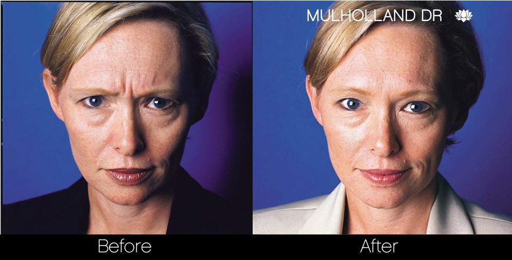 Botox Injectable - Before and After Gallery – Photo 9