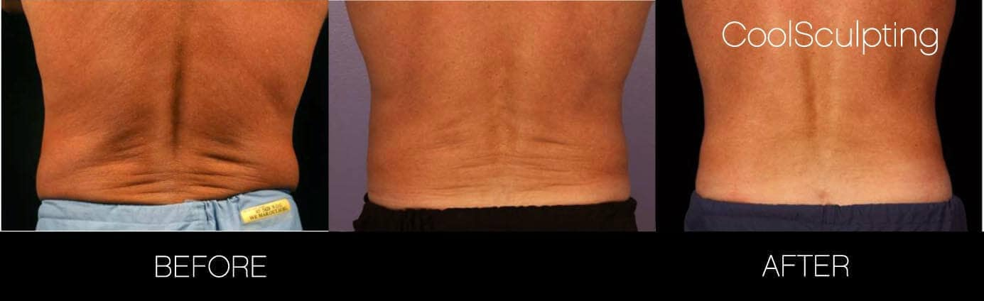 CoolSculpting - Before and After Gallery – Photo 9