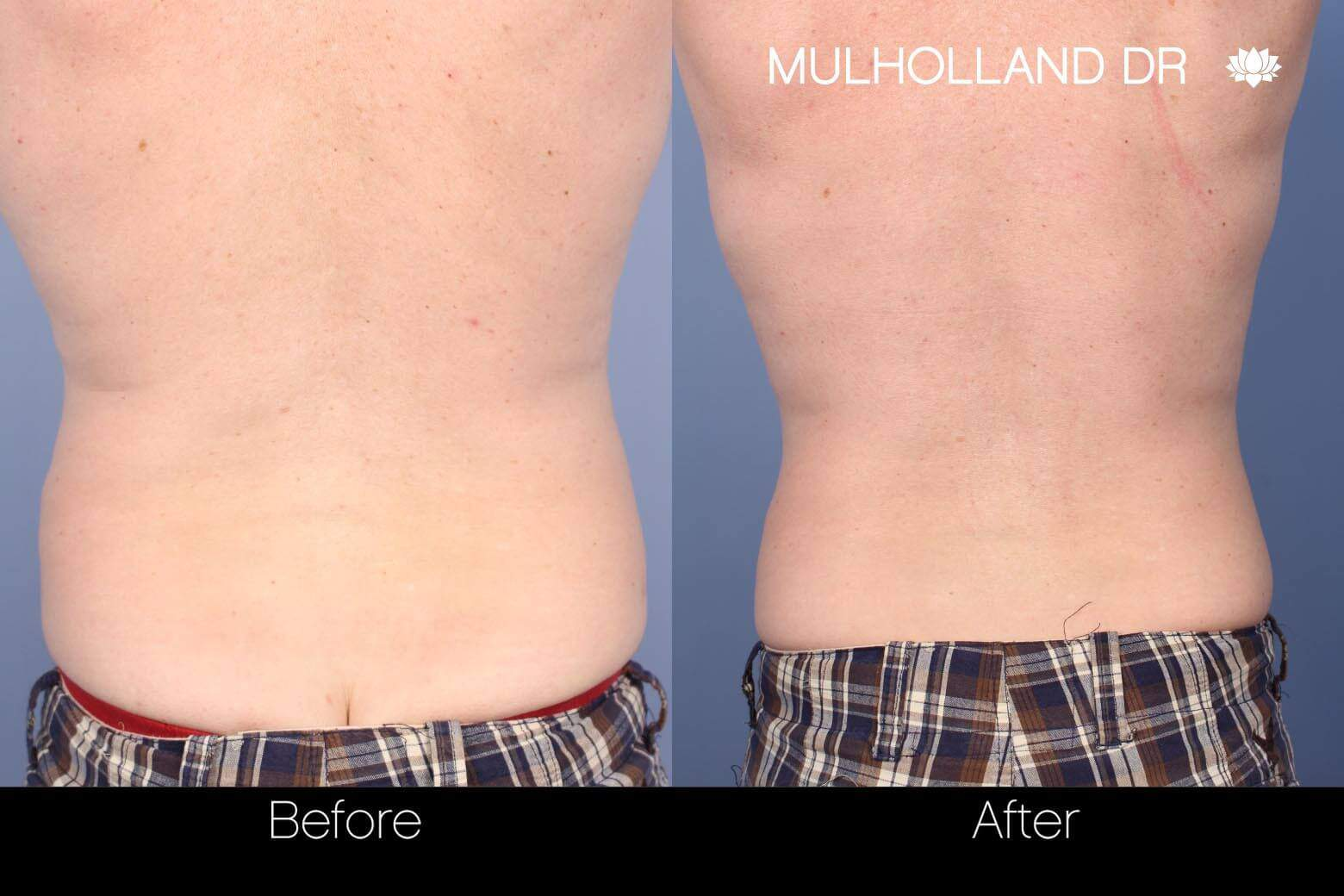 SculpSure - Before and After Gallery – Photo 8