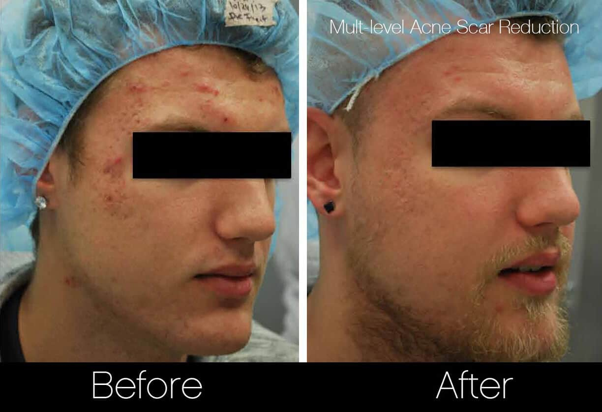 Acne Scar Treatments - Before and After Gallery – Photo 10