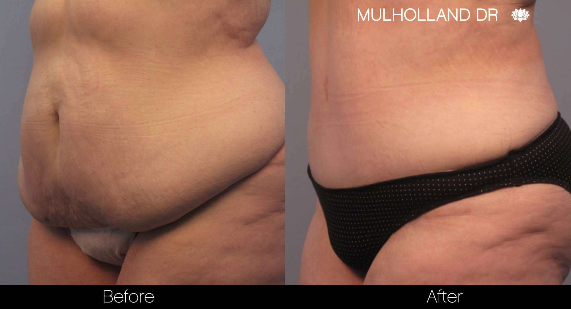 Tummy Tuck - Before and After Gallery – Photo 9