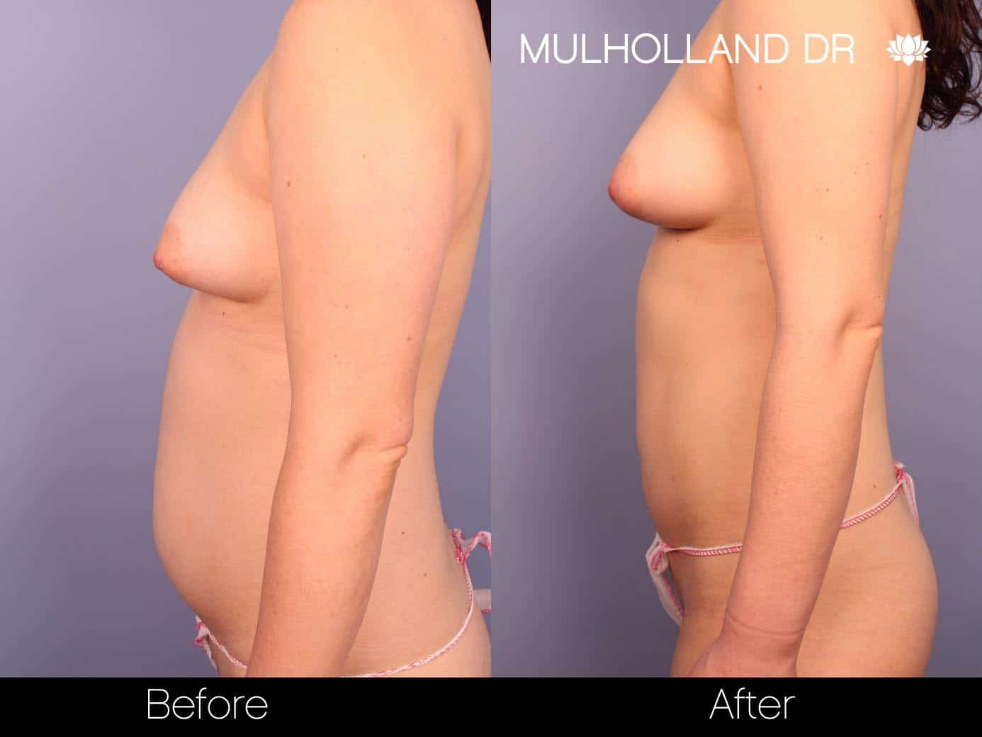 Fat Grafting Breast Augmentation - Before and After Gallery – Photo 9