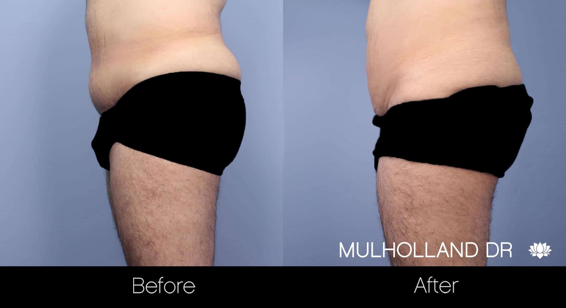 Male Tummy Tuck (Belt Lipectomy) - Before and After Gallery – Photo 10