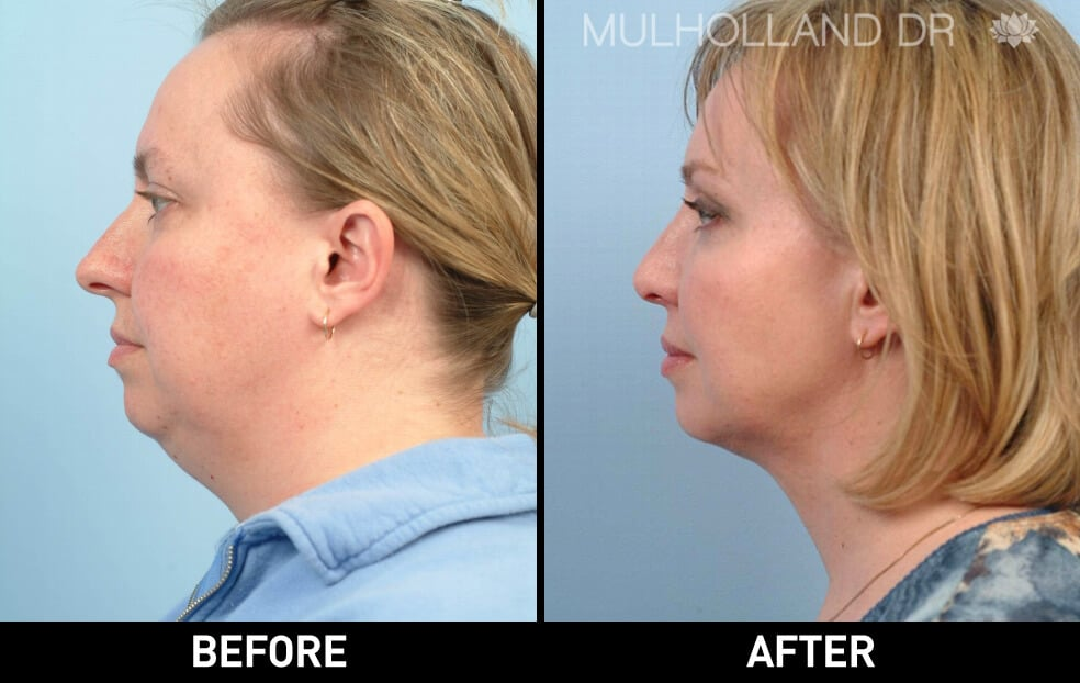 Neck Lift- Before and After Gallery – Photo 10
