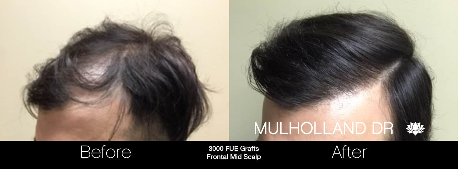 FUE Hair Male - Before and After Gallery – Photo 10