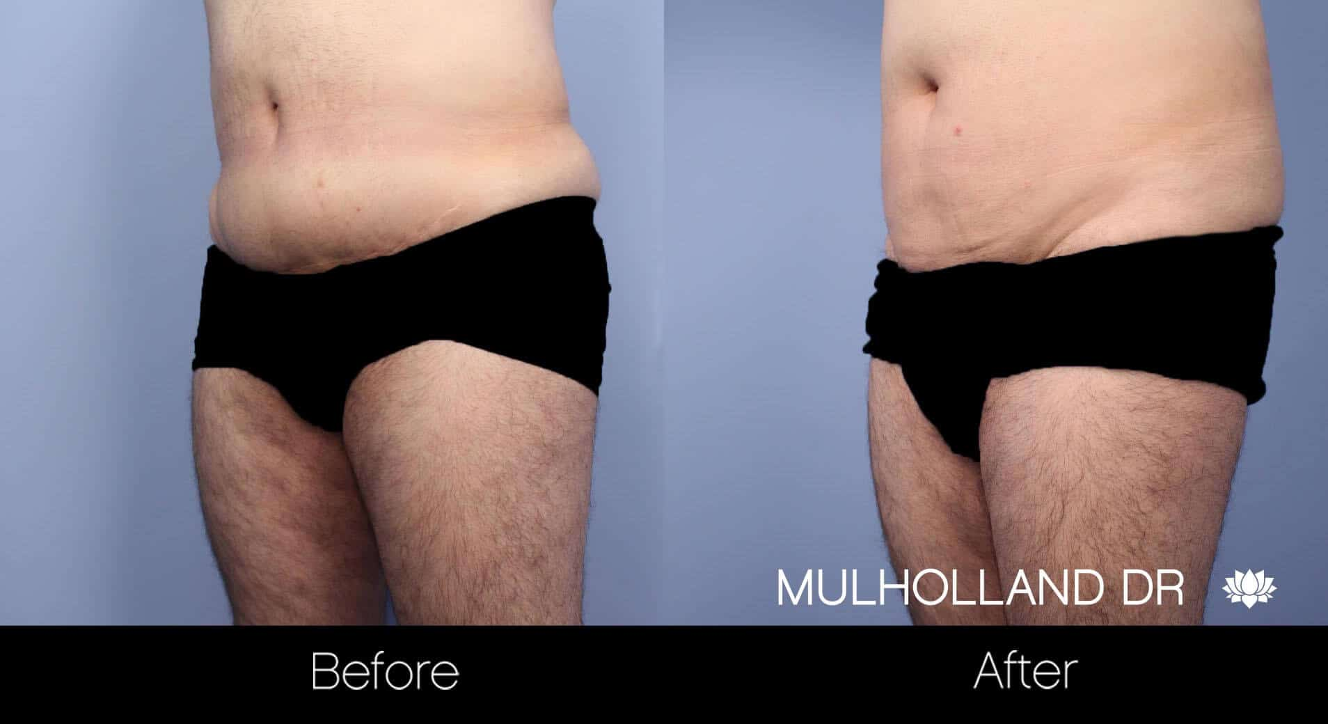 Male Tummy Tuck (Belt Lipectomy) - Before and After Gallery – Photo 11