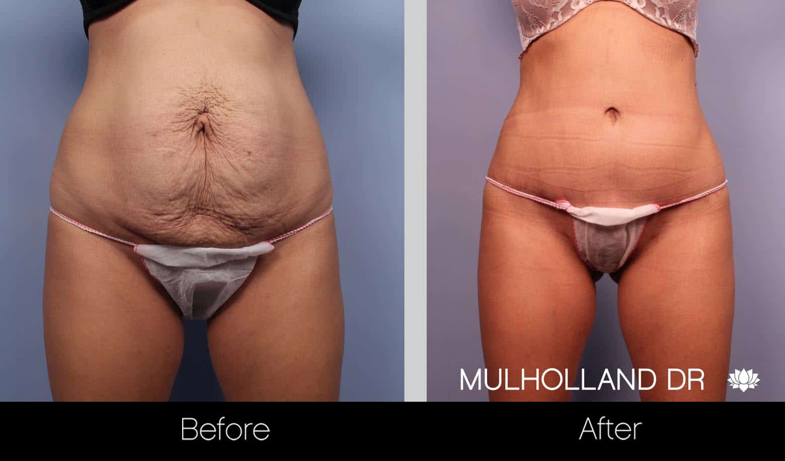 Mini Tummy Tuck - Before and After Gallery – Photo 10