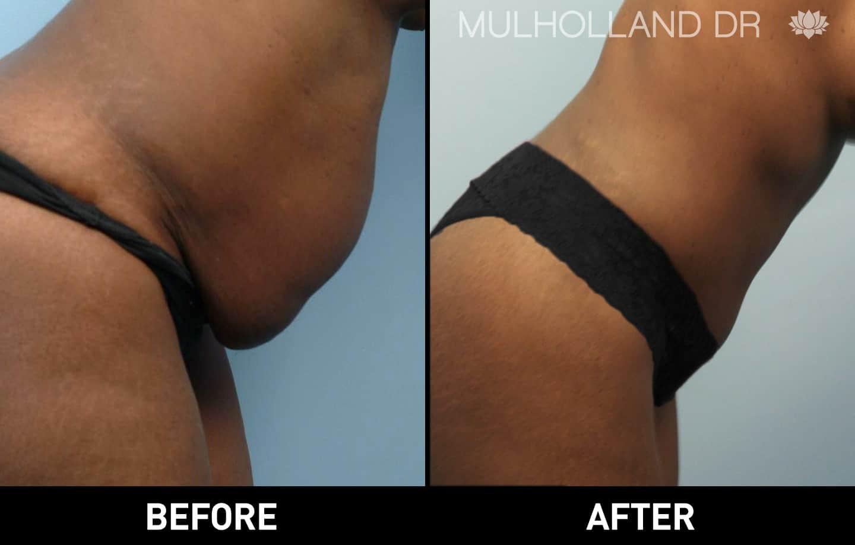 Tumescent Liposuction - Patient 7