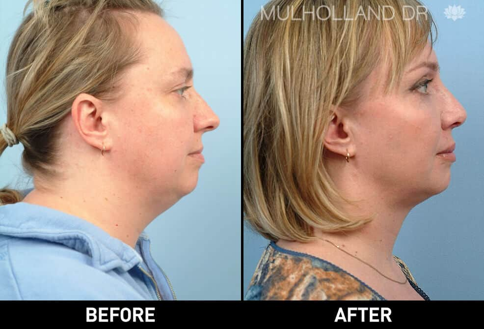 Neck Lift- Before and After Gallery – Photo 11