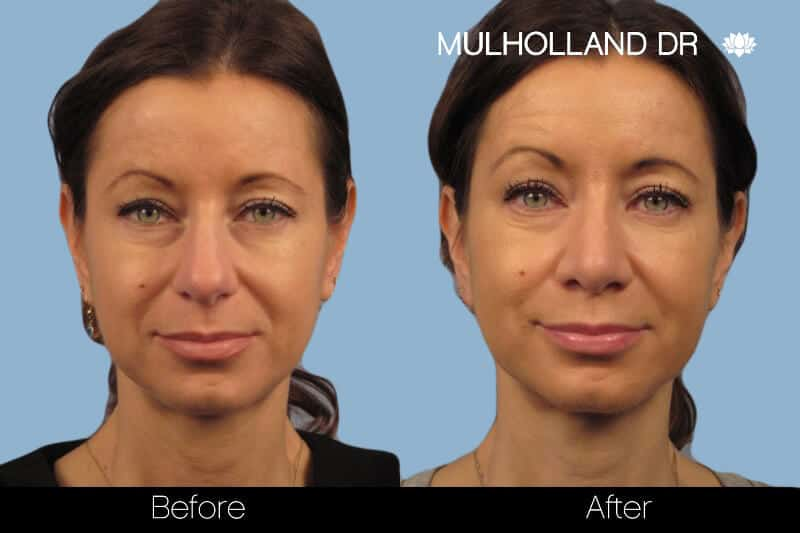 Rhinoplasty - Before and After Gallery – Photo 11
