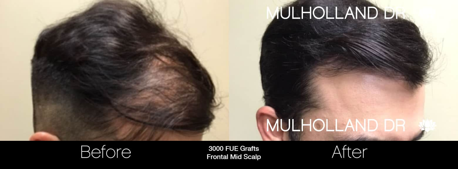 FUE Hair Male - Before and After Gallery – Photo 11