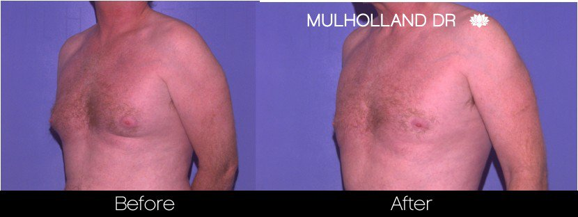 Gynecomastia Surgery (Male Breast Reduction) - Before and After Gallery – Photo 4