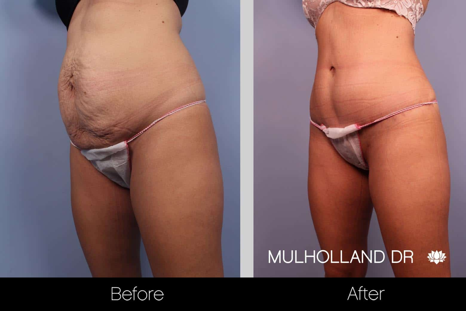 Mini Tummy Tuck - Before and After Gallery – Photo 11
