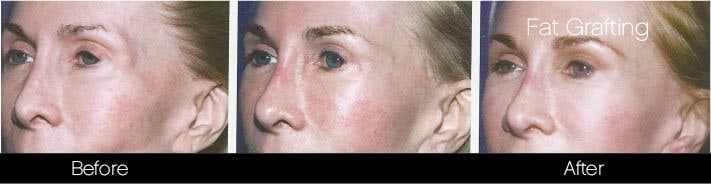 Facial Fat Transfer - Before and After Gallery – Photo 7