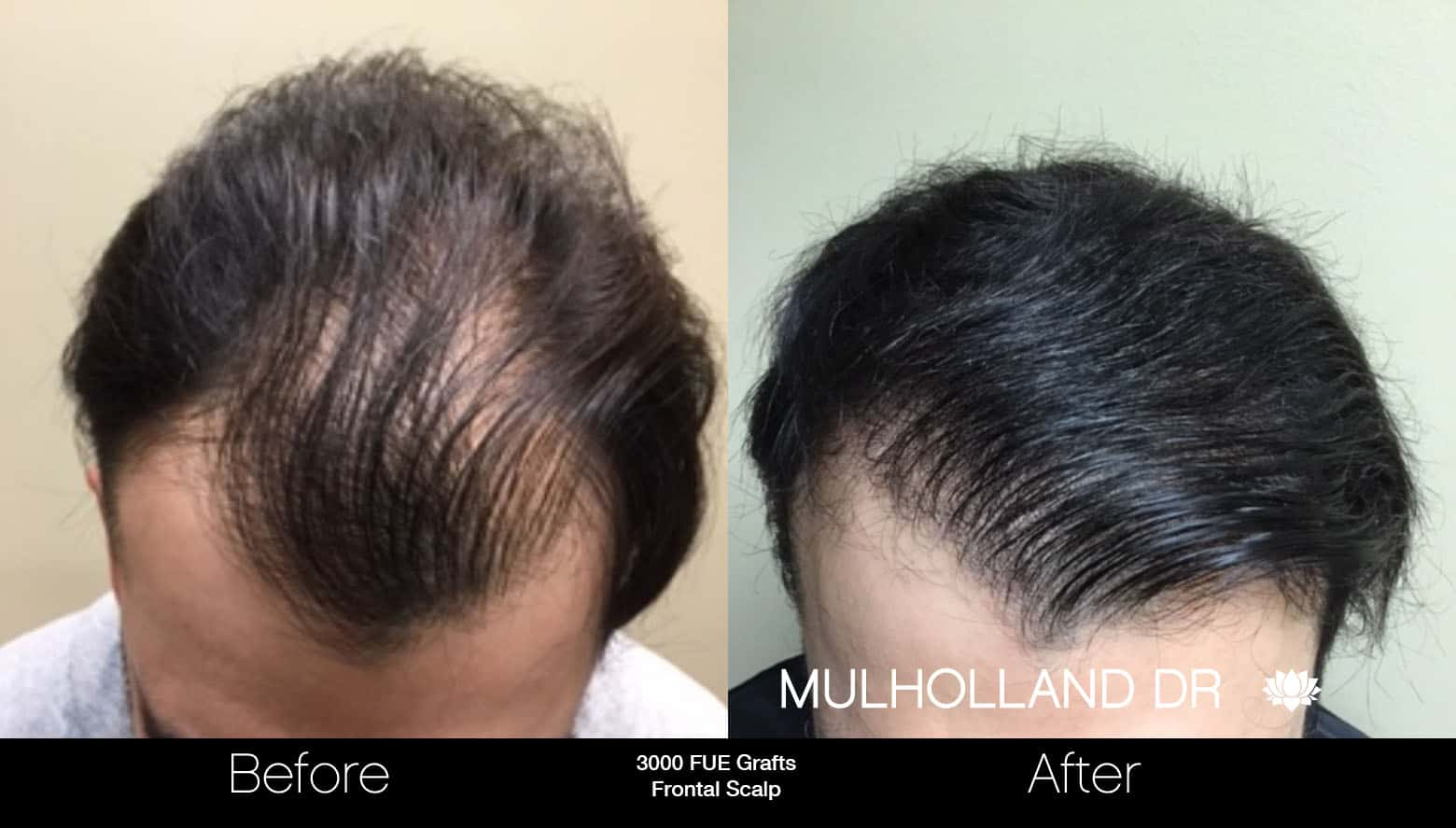 FUE Hair Male - Before and After Gallery – Photo 12