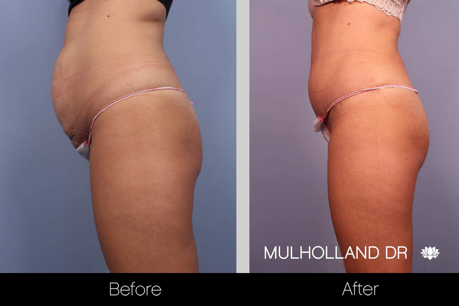 Mini Tummy Tuck - Before and After Gallery – Photo 12