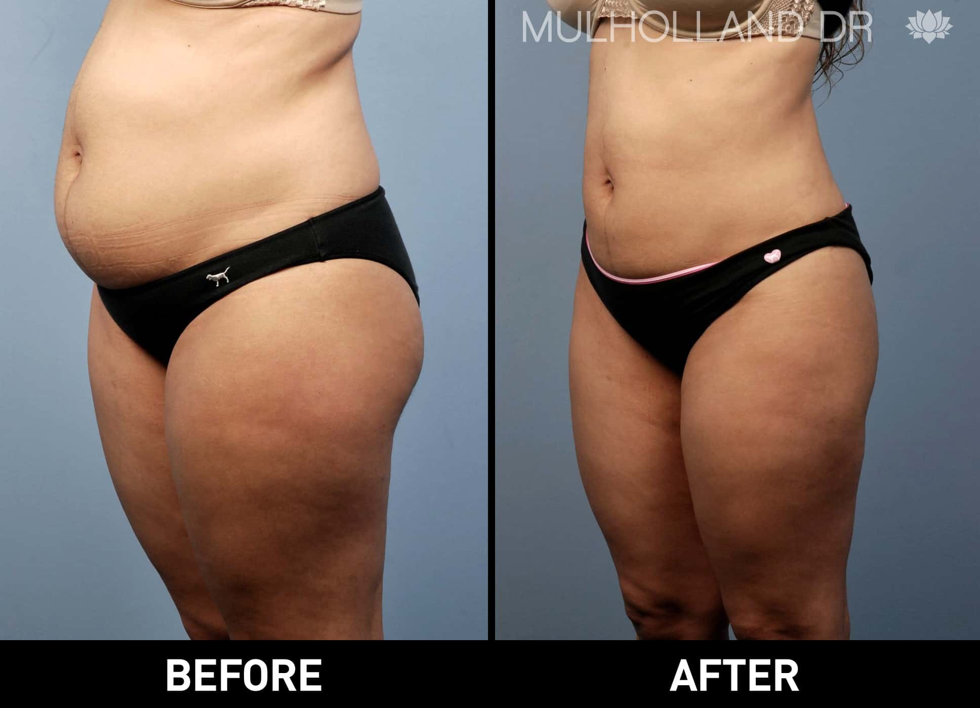 Tumescent Liposuction - Before and After Gallery – Photo 3