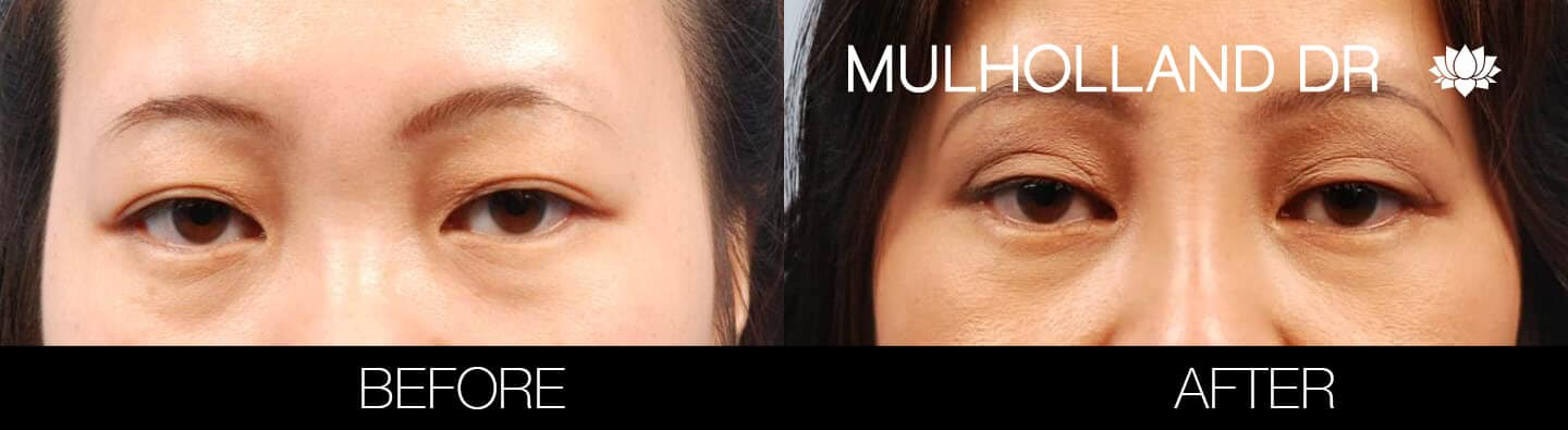Asian Blepharoplasty - Before and After Gallery – Photo 8