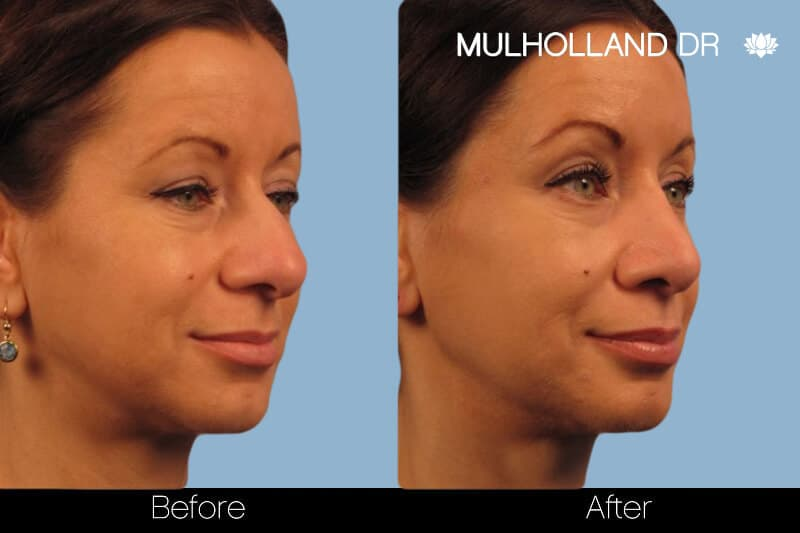 Rhinoplasty - Before and After Gallery – Photo 13