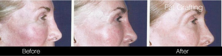 Facial Fat Transfer - Before and After Gallery – Photo 8