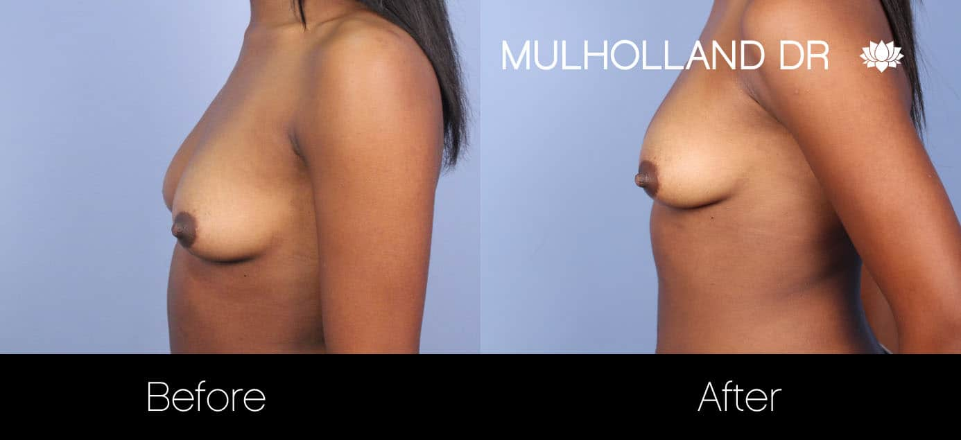 Fat Grafting Breast Augmentation - Before and After Gallery – Photo 13