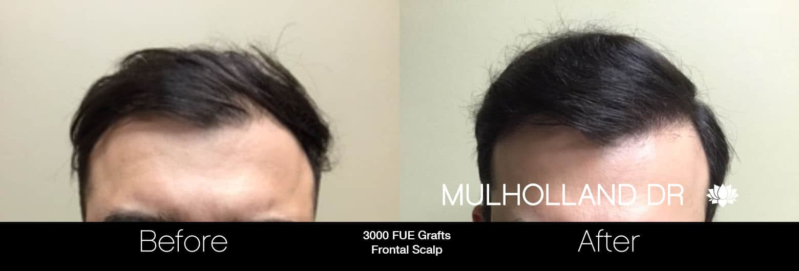 FUE Hair Male - Before and After Gallery – Photo 13