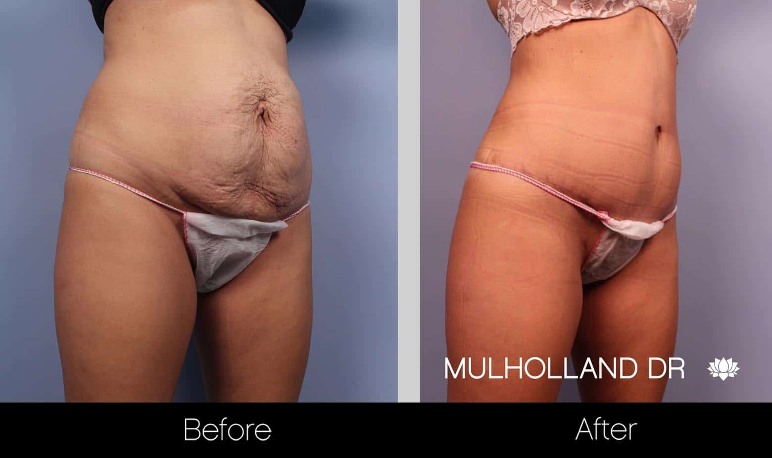 Mini Tummy Tuck - Before and After Gallery – Photo 13