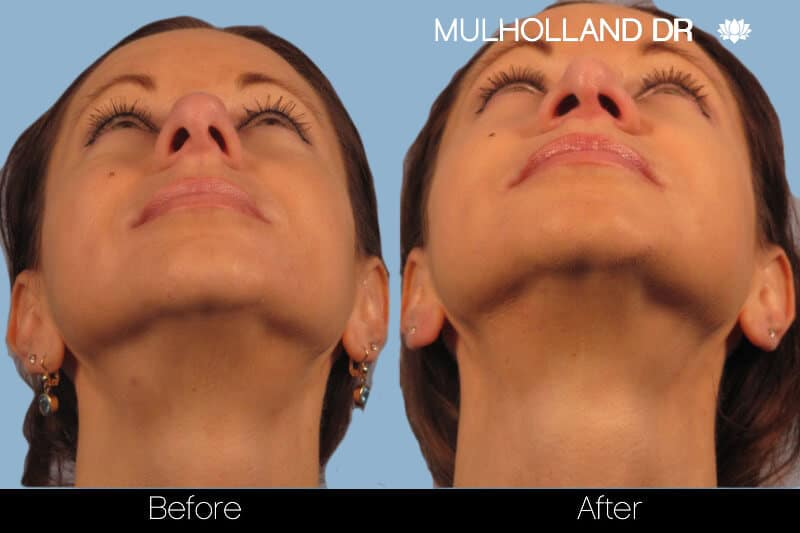 Rhinoplasty - Before and After Gallery – Photo 14