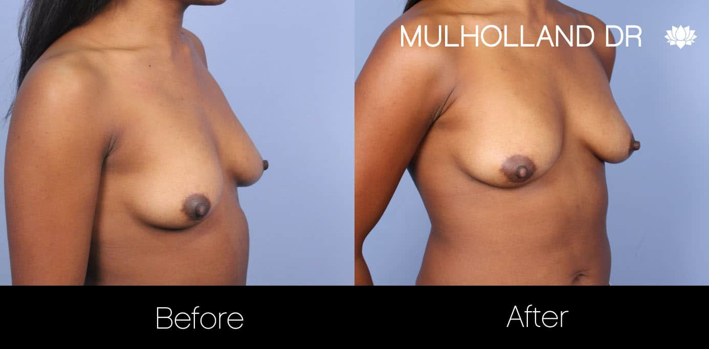 Fat Grafting Breast Augmentation - Before and After Gallery – Photo 14