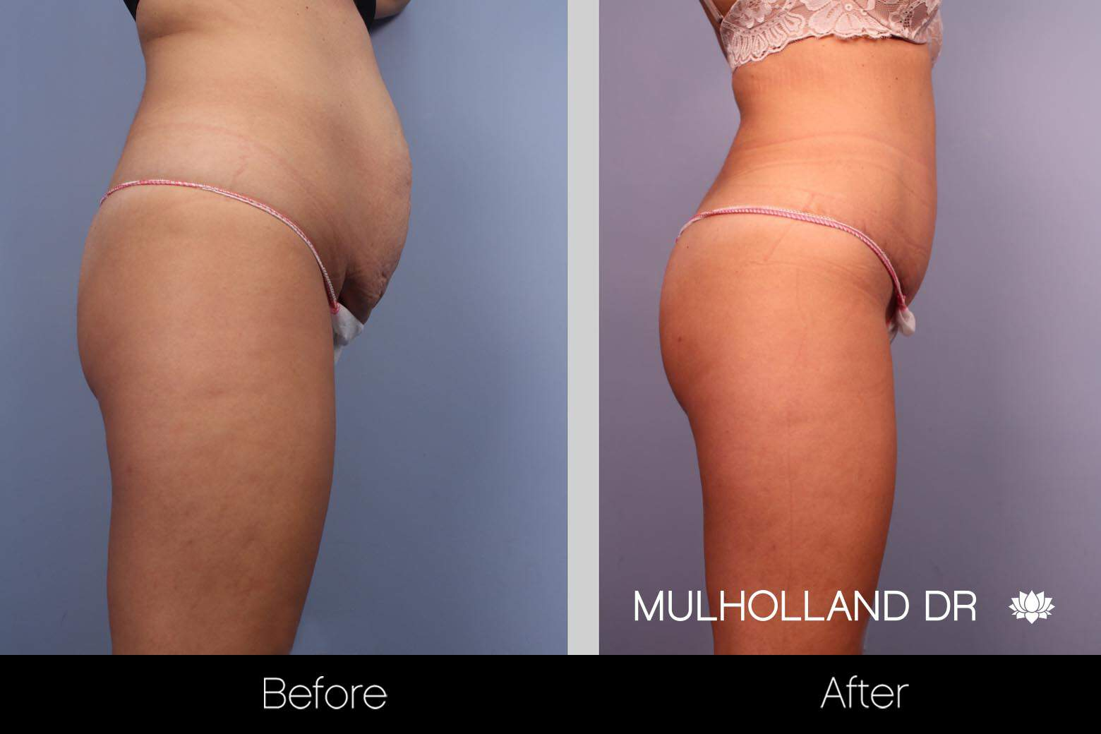 Mini Tummy Tuck - Before and After Gallery – Photo 14