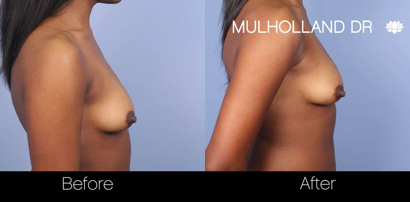 Fat Grafting Breast Augmentation - Before and After Gallery – Photo 15