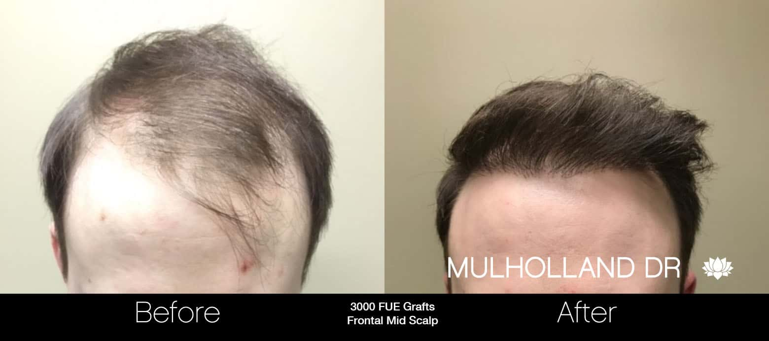 FUE Hair Male - Before and After Gallery – Photo 15