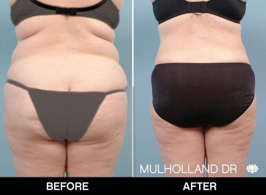 Tumescent Liposuction - Patient 2