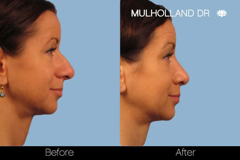 Rhinoplasty - Before and After Gallery – Photo 17