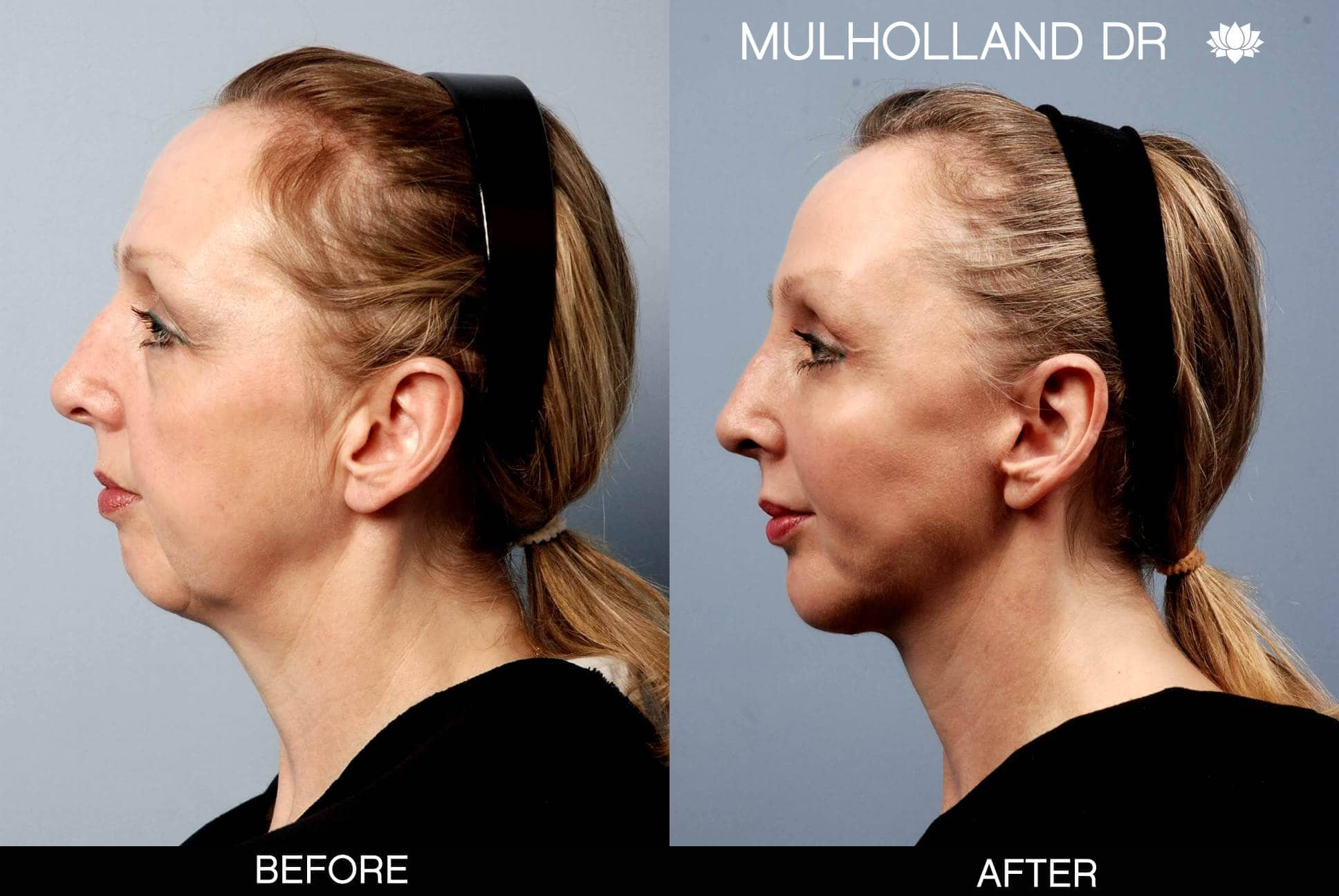 Cheek Lift - Before and After Gallery – Photo 4