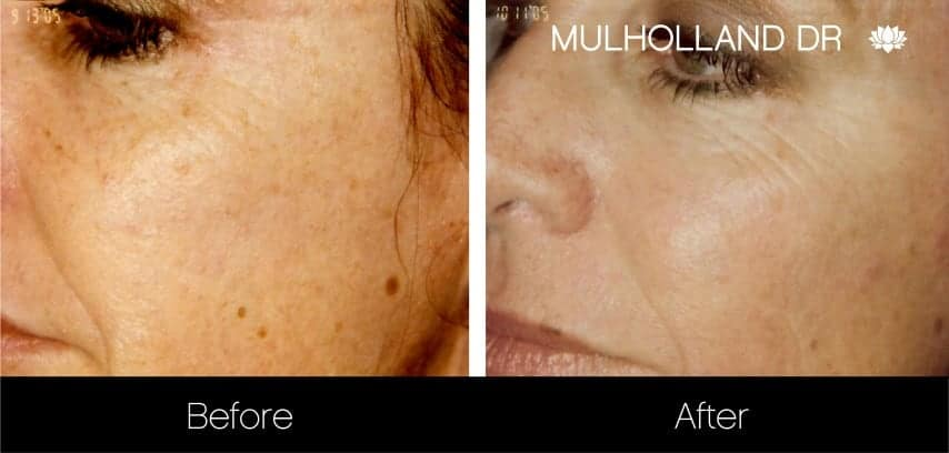 Microneedling - Before and After Gallery – Photo 1