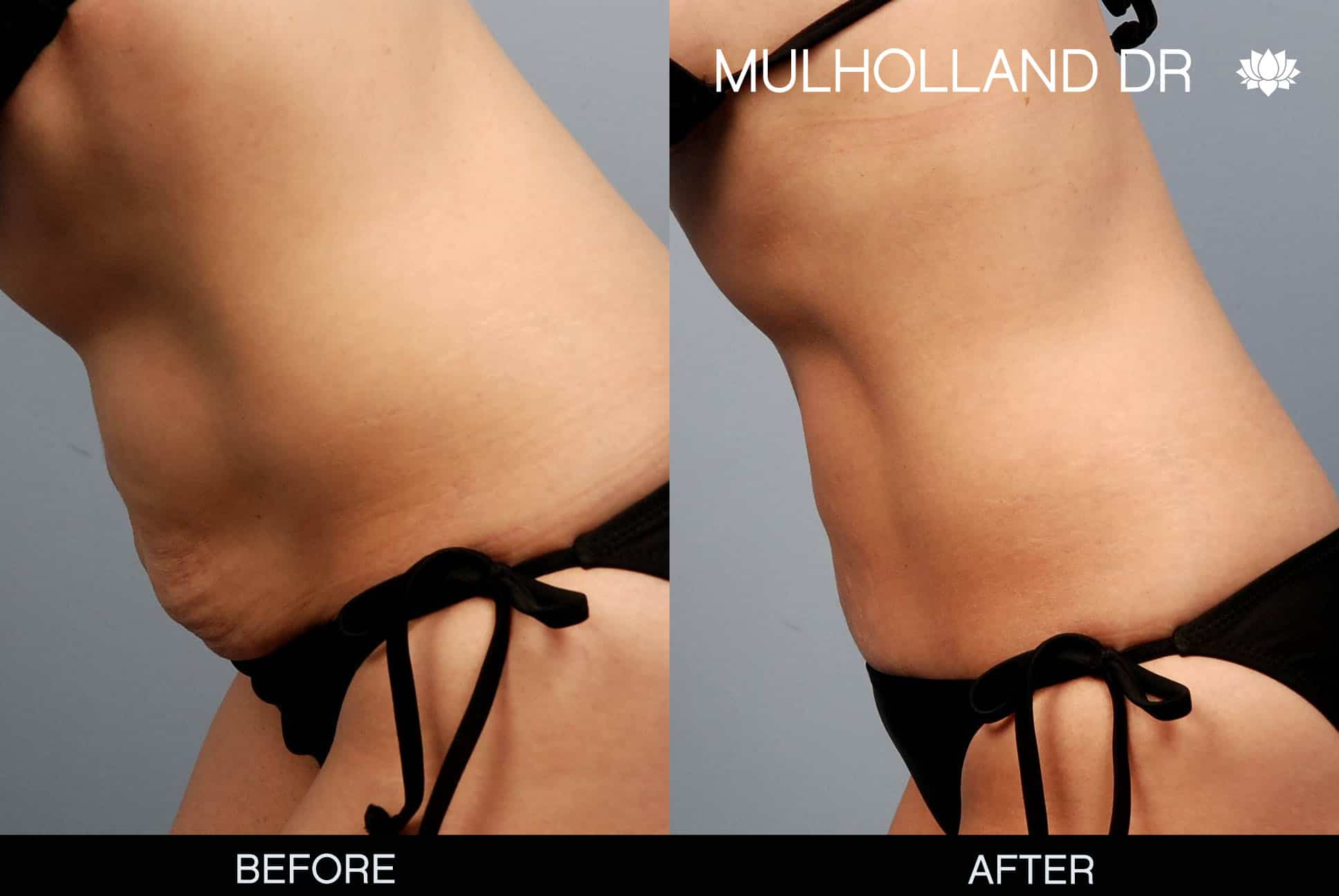 Mini Tummy Tuck - Before and After Gallery – Photo 1
