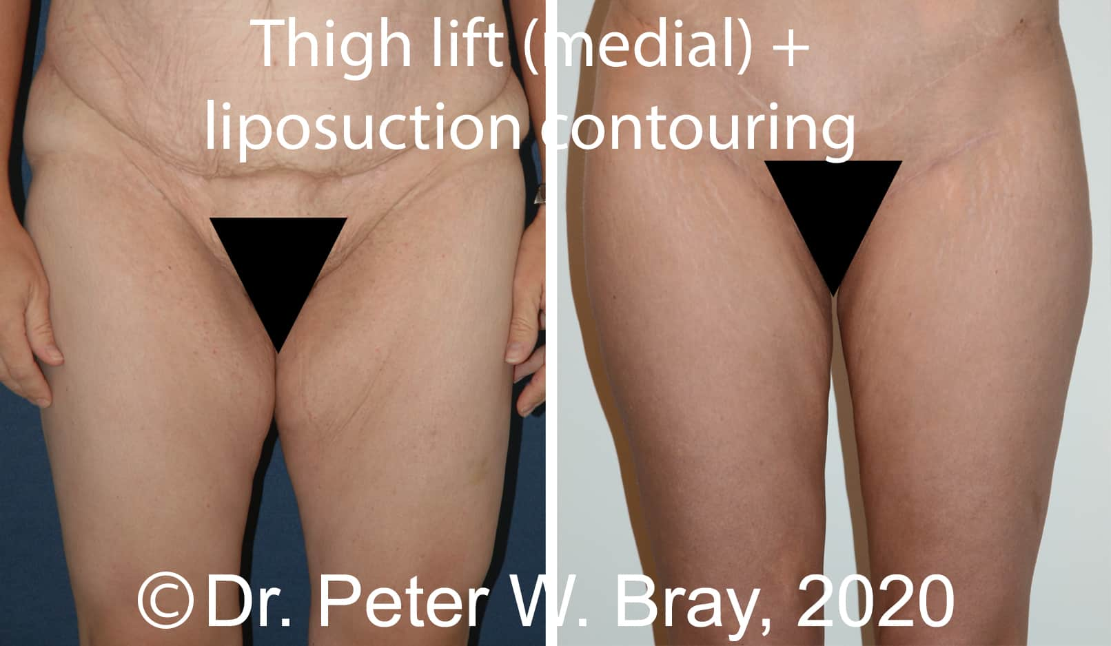 Thigh Lift - Before and After Gallery – Photo 1