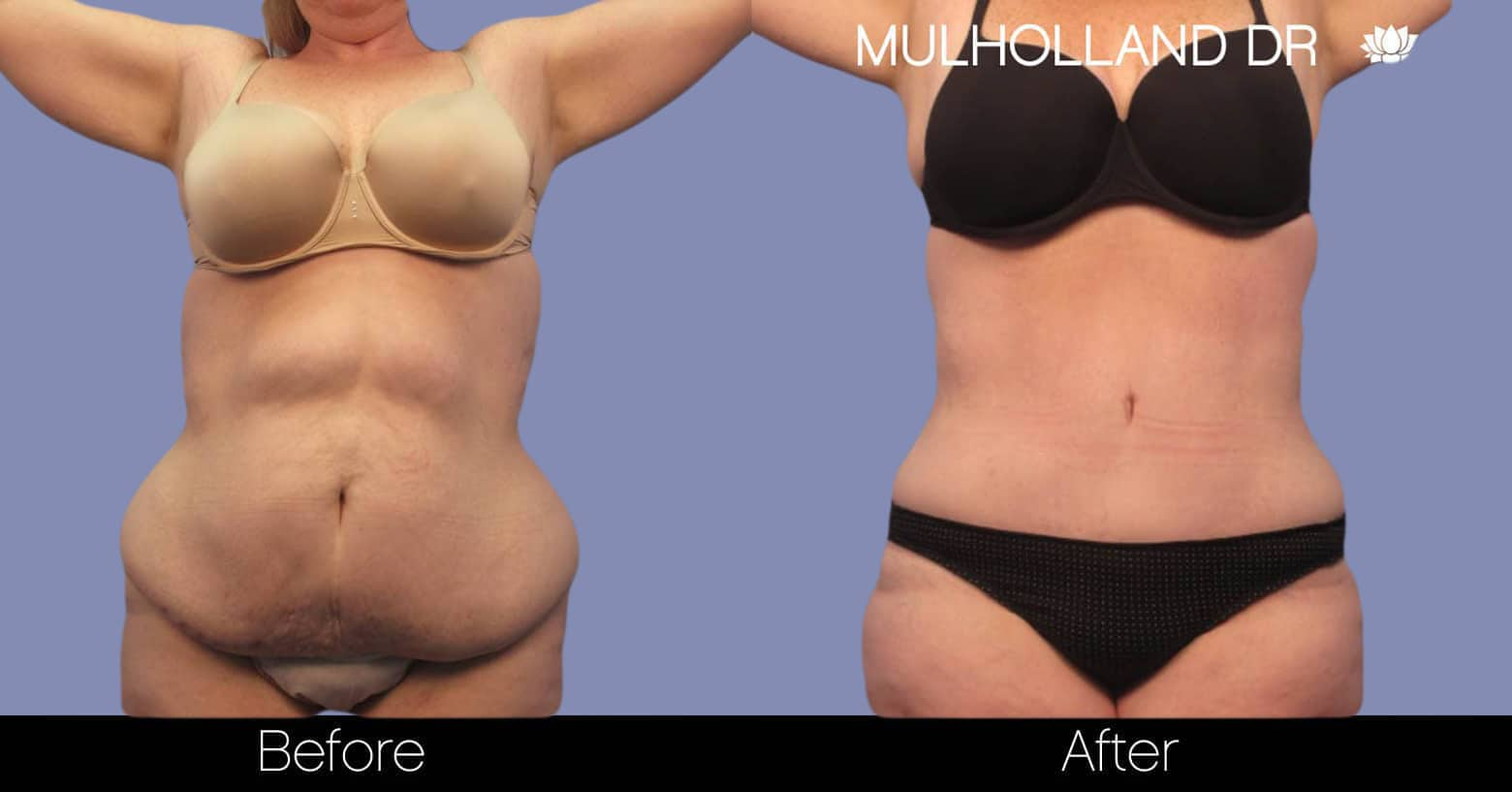Tumescent Liposuction - Before and After Gallery – Photo 1