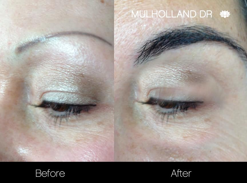 Eyebrows FUE - Before and After Gallery – Photo 1