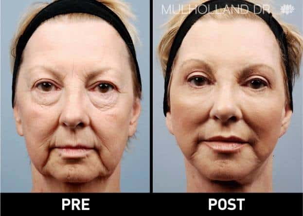 Facial Fat Transfer - Before and After Gallery – Photo 1
